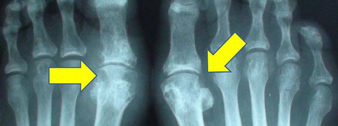 Osteomielite (Oncologia Ortopédica Londrina / Reprodução)