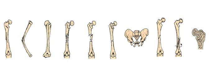 Fraturas: múltiplas, por encurtamento ou torção, completa ou incompleta, de impacto, oblíquas, epifisárias e penetrantes, por fadiga, fechadas ou abertas (Reprodução)
