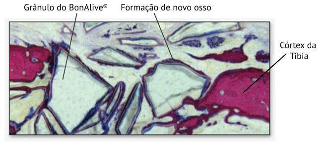 Figura 1. Corte histológico de 2 semanas após a implantação do BonAlive® putty