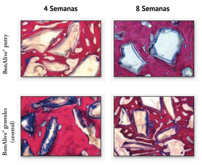 Figura 2. Corte histológico de espessura de 80-100 μm, das áreas de implantação dos grânulos e putty, na 4ª e 8ª semanas