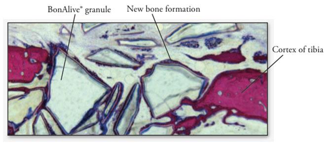 Figure 1. Histological section 2 weeks after BonAlive® putty implantation