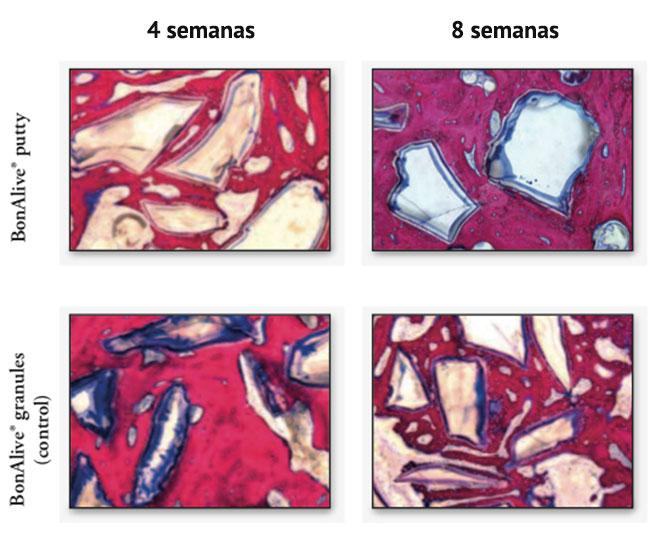 Figura 2. Espesor de corte histológico de 80 a 100 micras en las zonas de despliegue de los granos y la masilla en las cuarta y octava semana